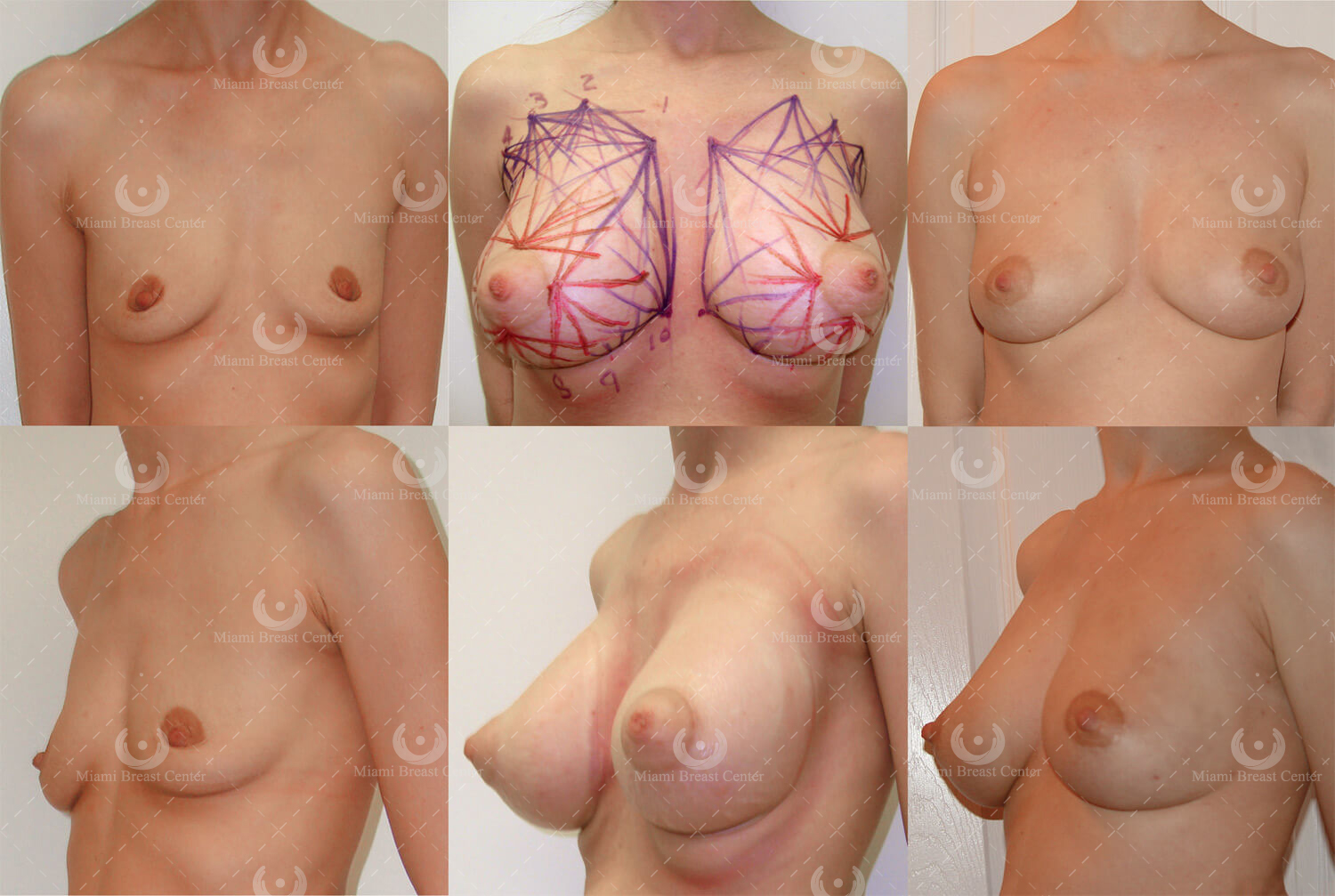 the effects of BRAVA on breast tissue
