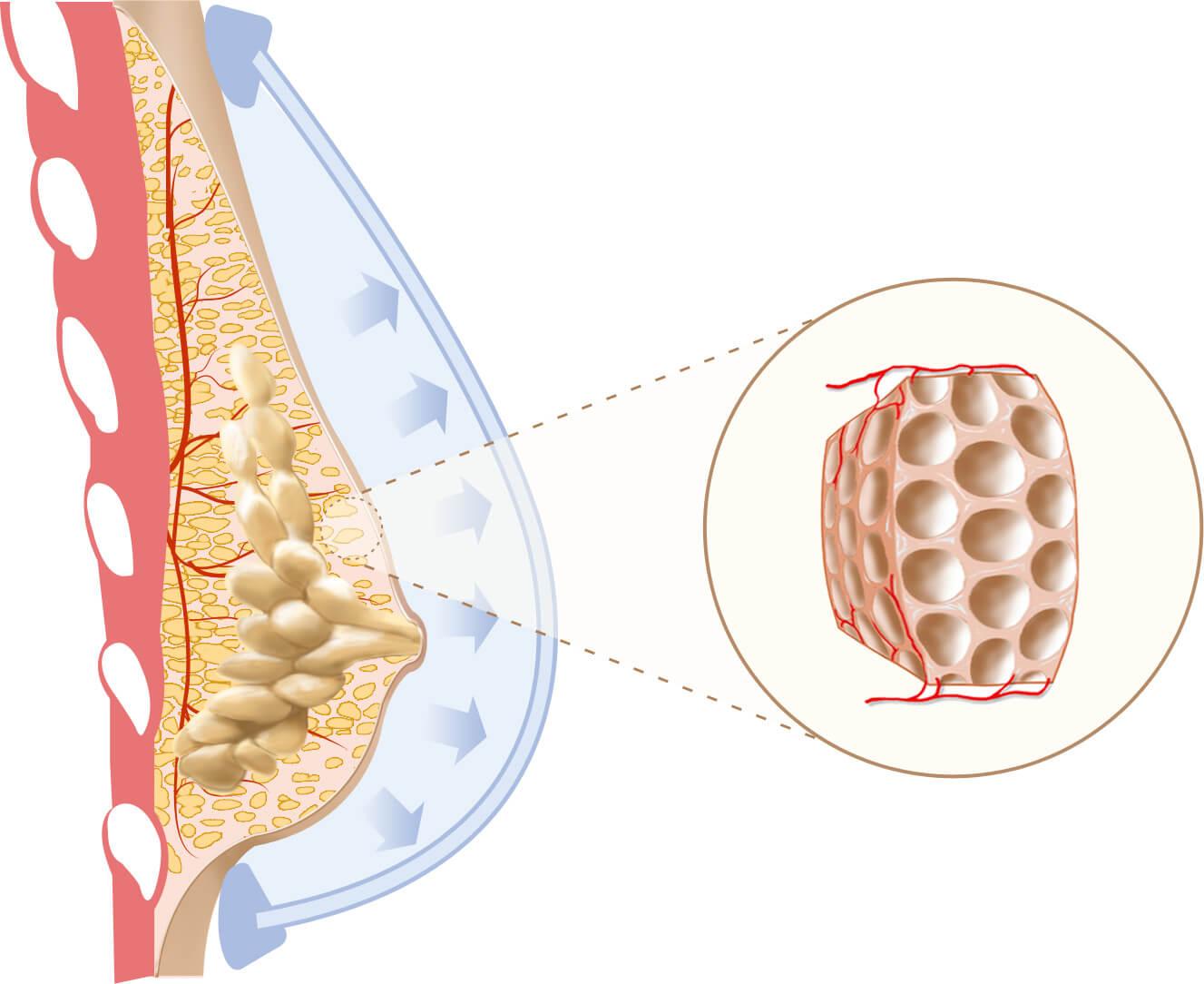 Cómo funciona el aumento de senos naturales? -