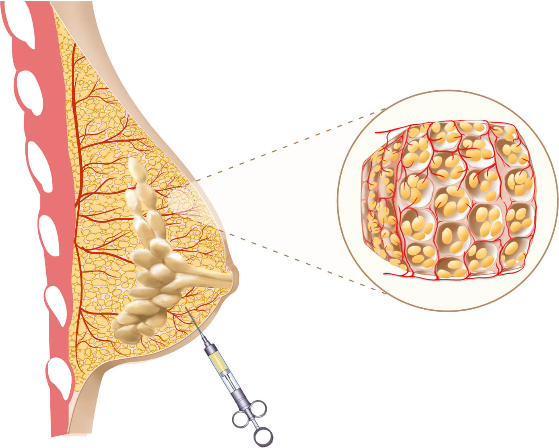 La operación plástica en el pecho ufa