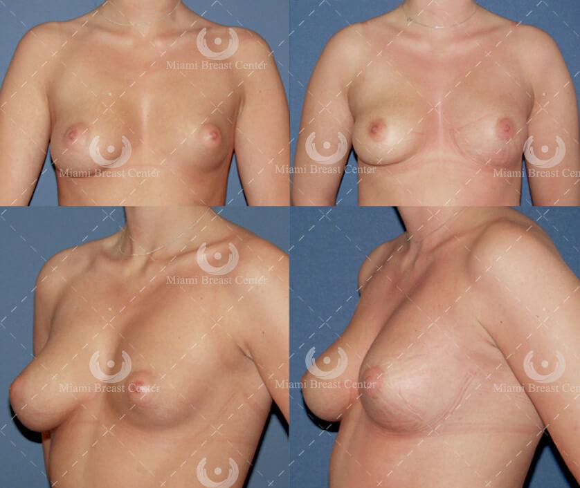 Deformidad de Mamas Asimétricas tubular