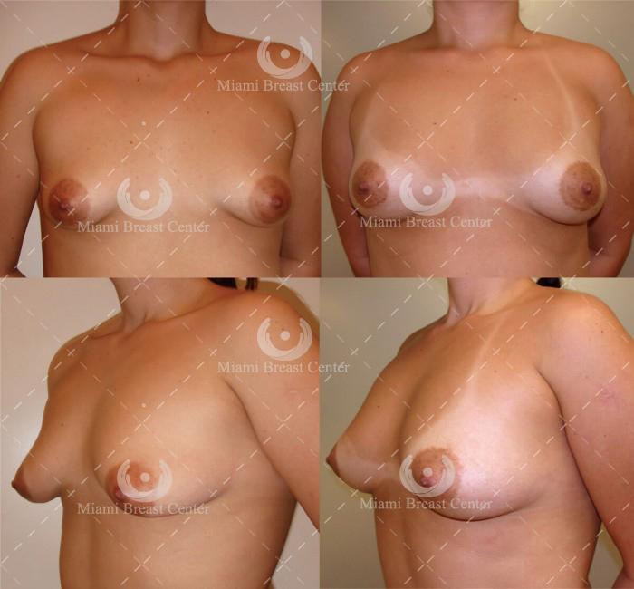 deformidad de mamas tubulares