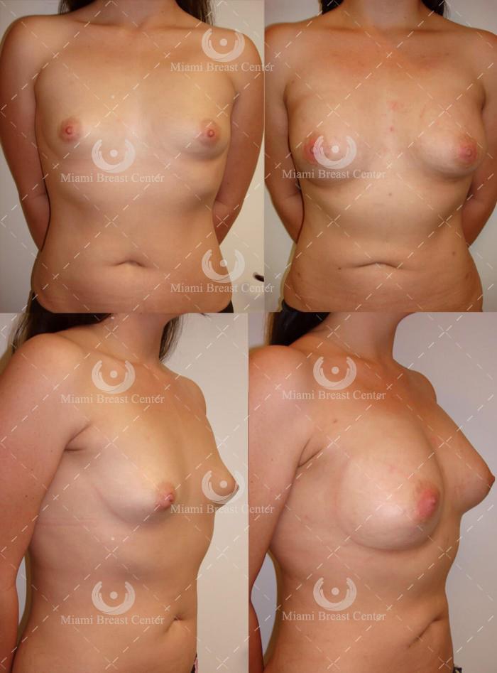 Fotos de corrección de Deformidad mamaria tuberosas