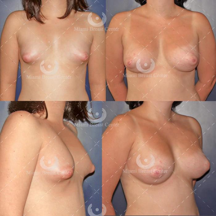 deformidad mamaria tuberosa galeria de fotos