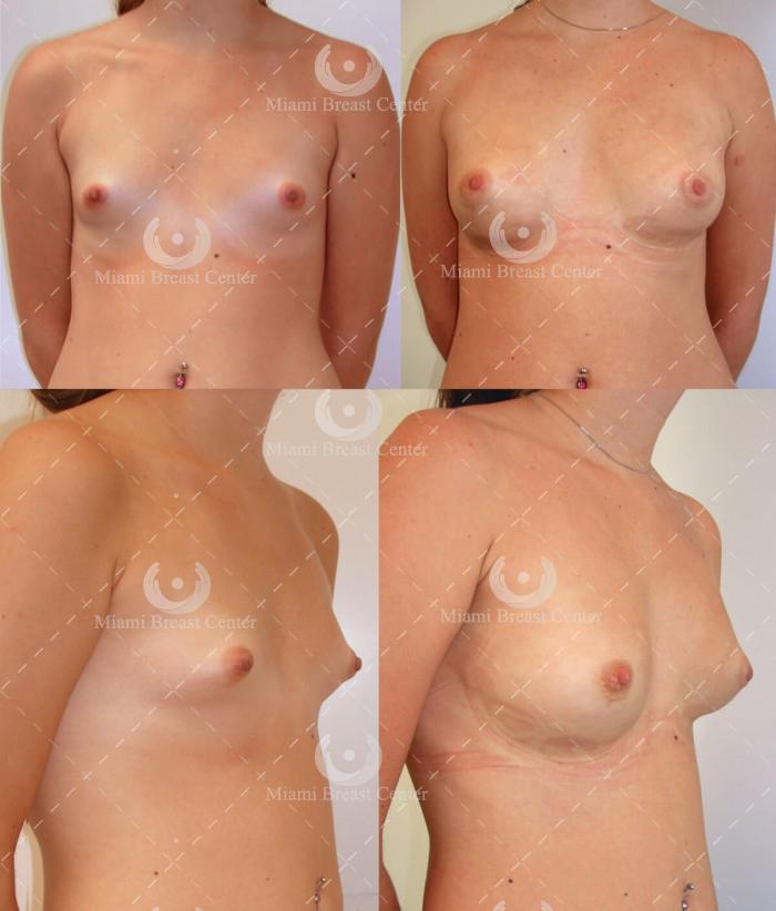 Deformidad de Mama Tubular foto de corrección de seno