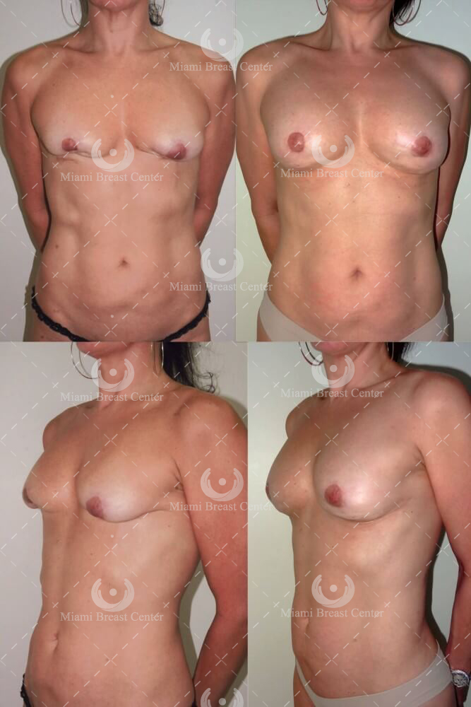 breast implant removal photo gallery