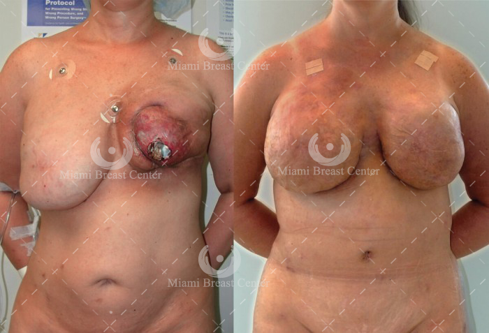 failed implant breast reconstruction before after photo