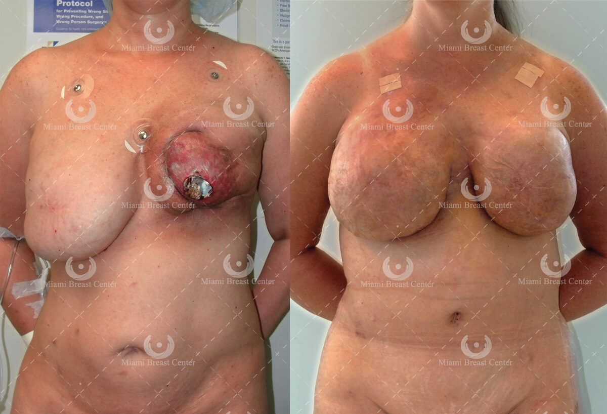 breast reconstruction surgery after failed implant
