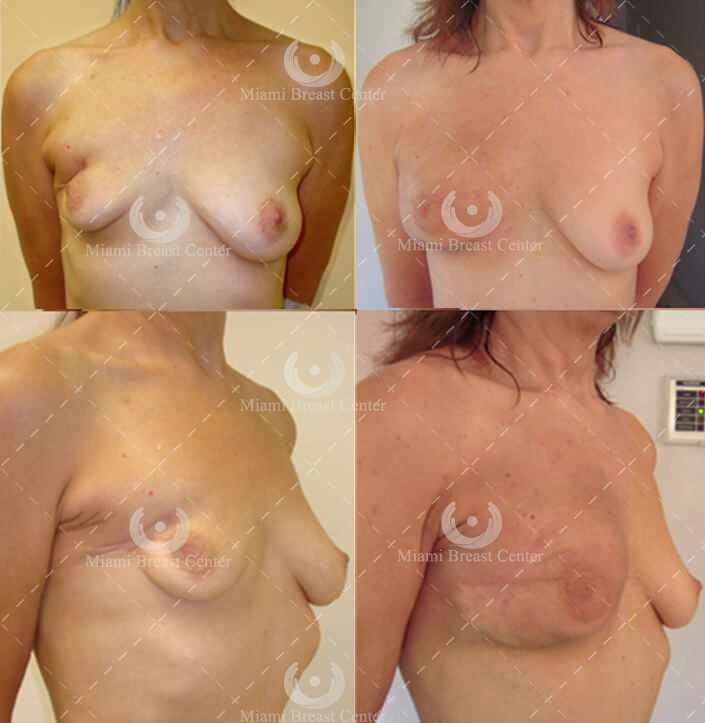lumpectomy breast reconstruction before after photo