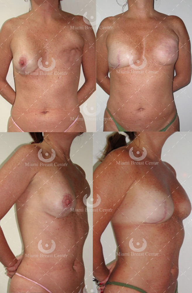 breast reconstruction before after photo