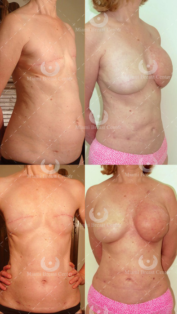 breast reconstruction after mastectomy photo gallery