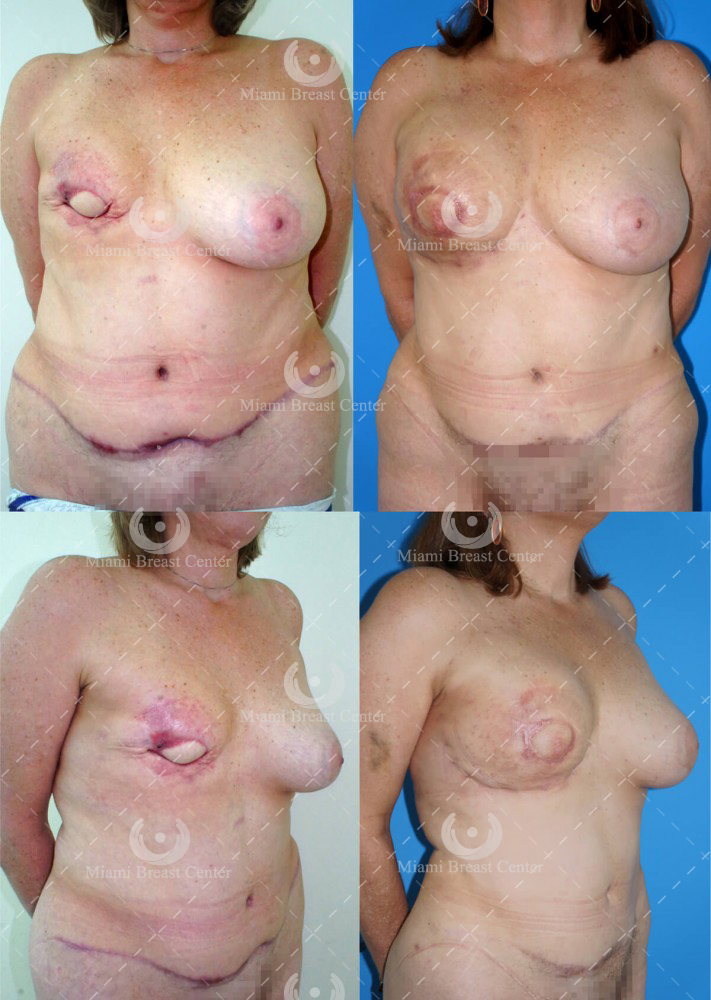 Failed Flap Breast Reconstruction