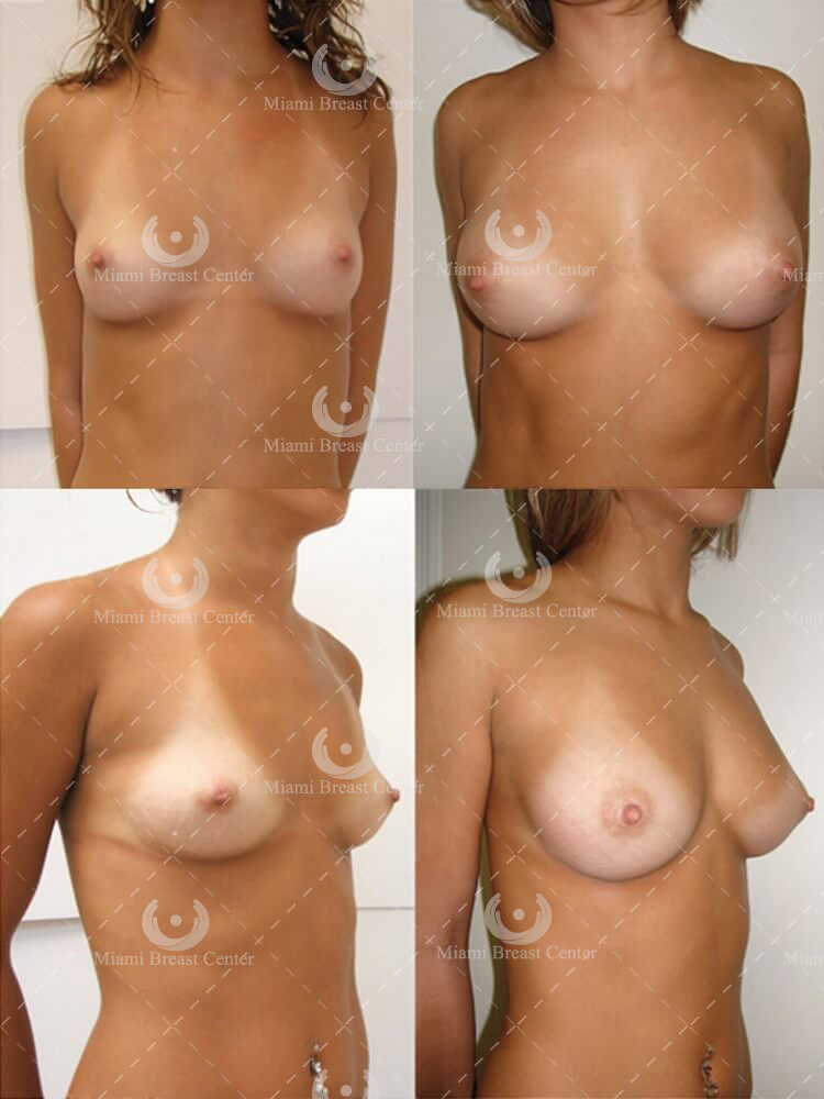 Breast after augmentation before