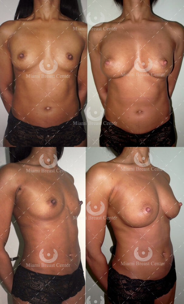 fat transfer breast enlargement