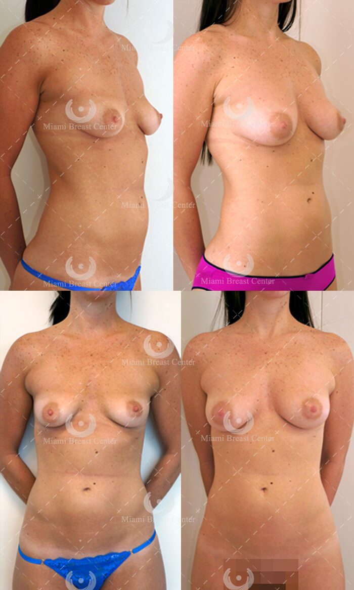 Breast enhancements using fat