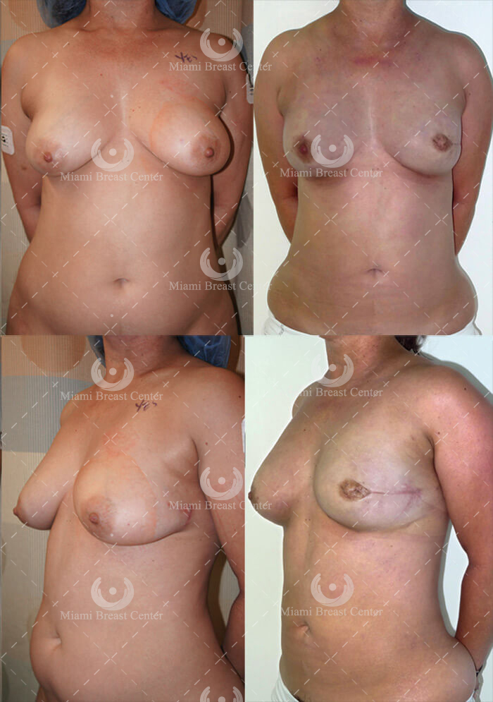 prophylactic mastectomy photos