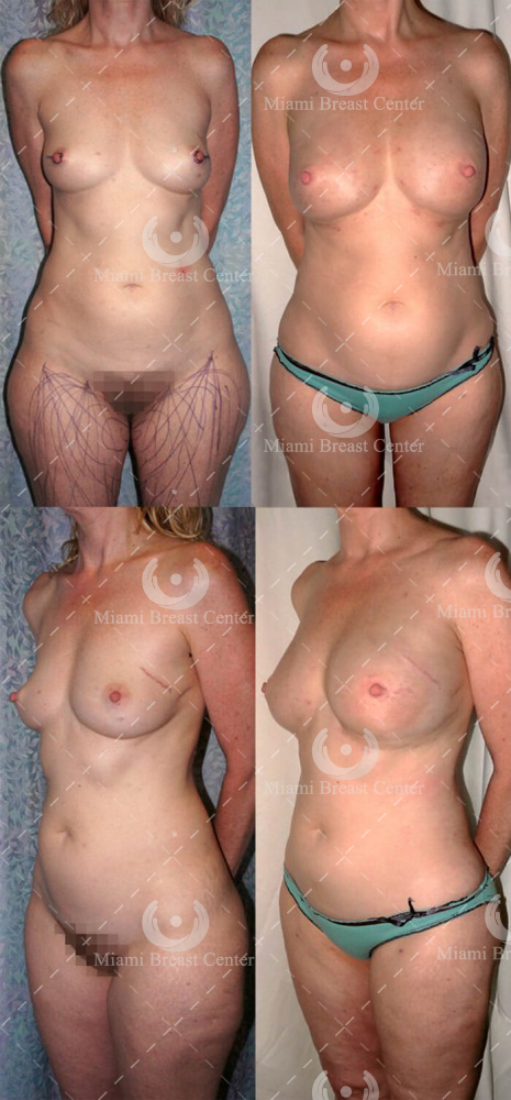 prophylactic mastectomy photos before after