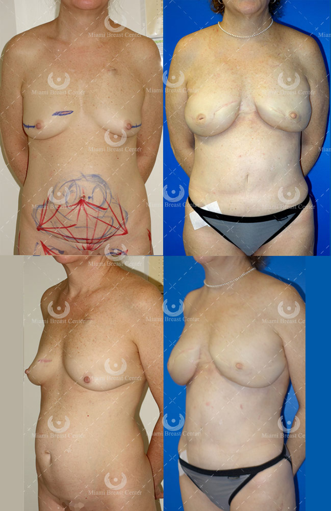 prophylactic mastectomy photos
