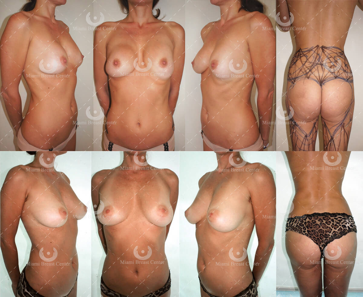 After implants problem breast