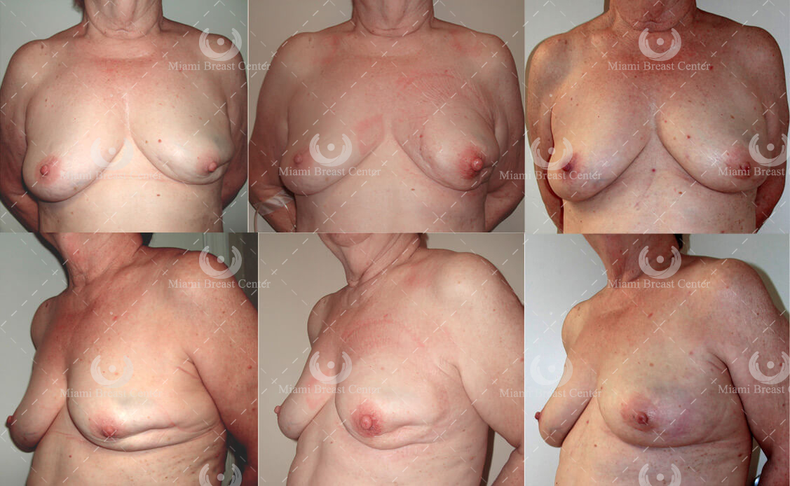 lumpectomy breast reconstruction before after