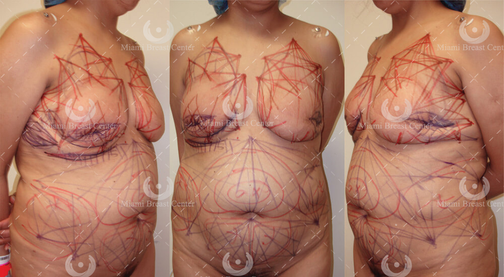 breast reconstruction surgery after mastectomy