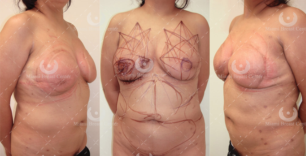 breast reconstruction after mastectomy