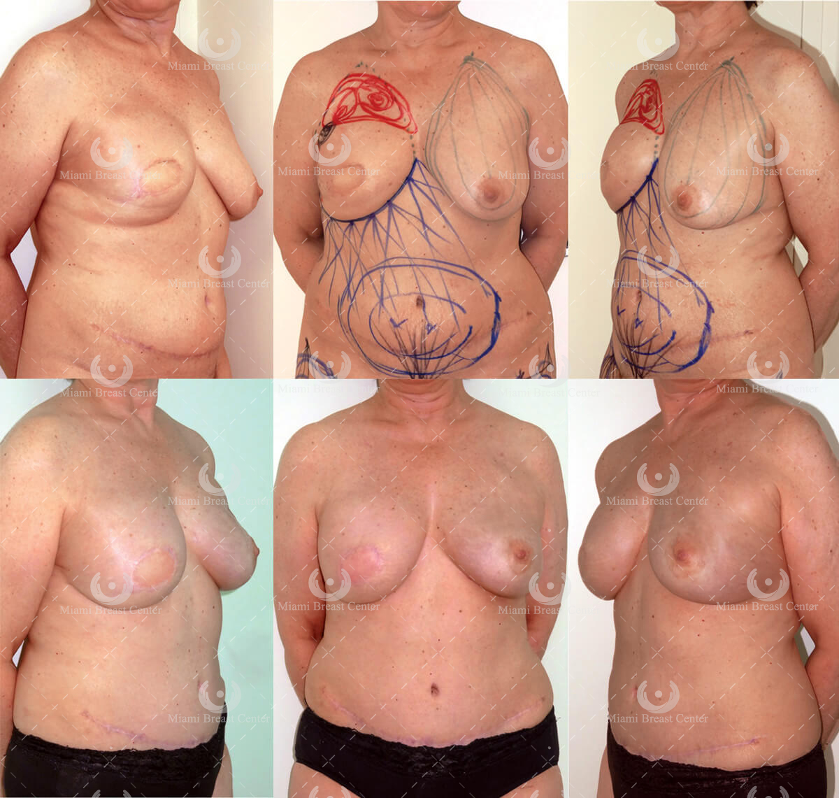 Breast inhancement without surgery