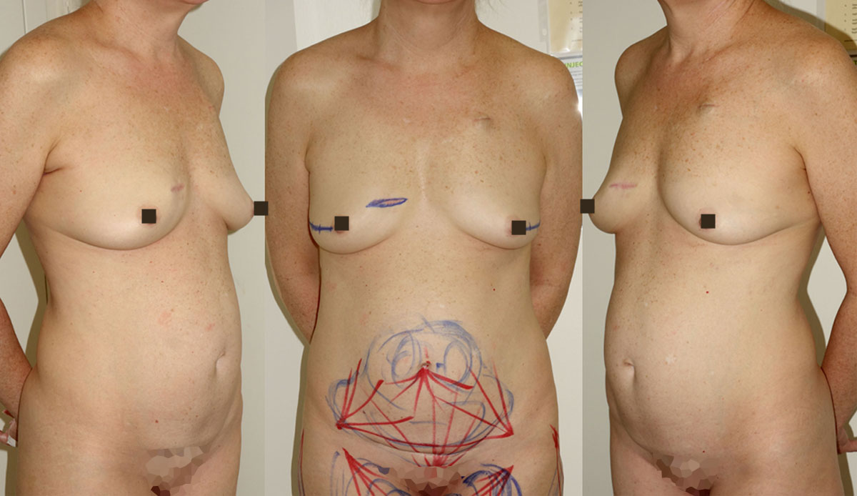 immediate mastectomy reconstruction with fat prophylactic