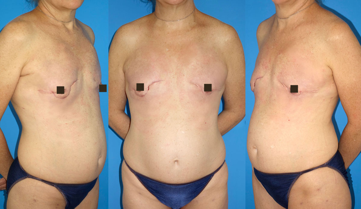 prophylactic mastectomy reconstruction immediate with fat