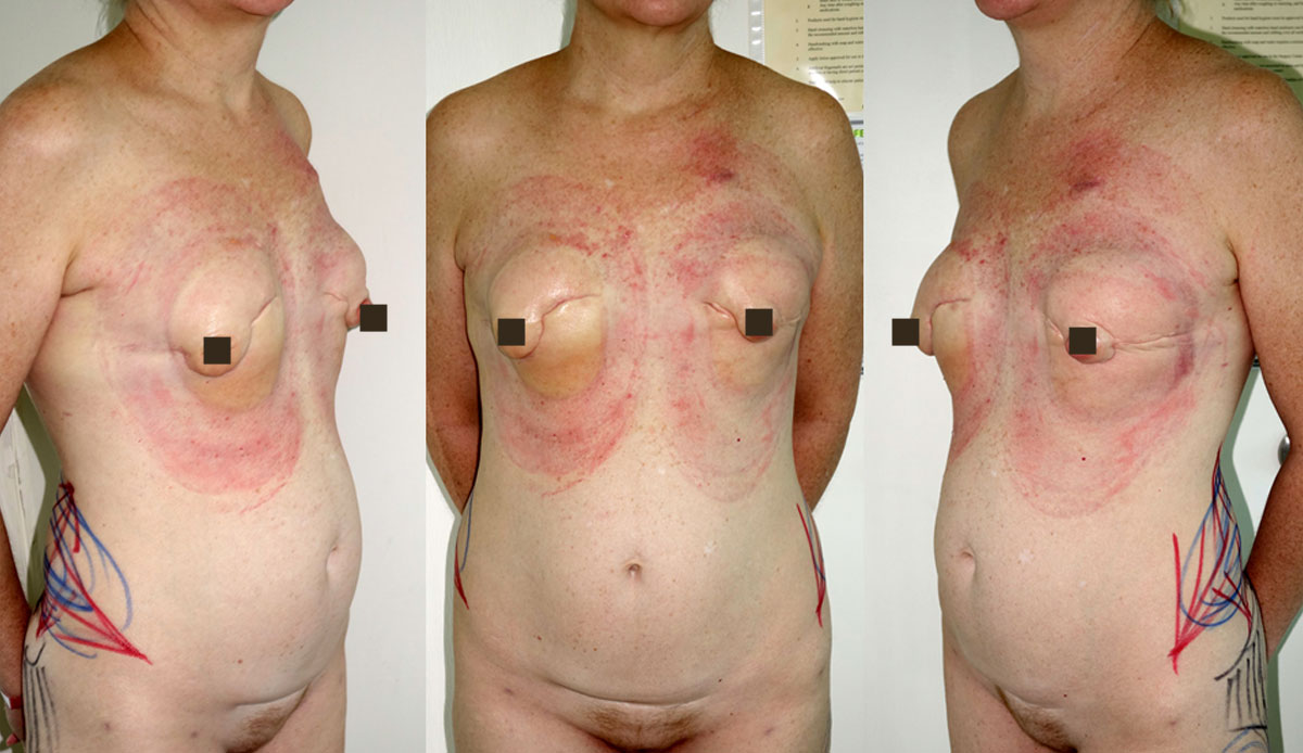 immediate mastectomy reconstruction with BRAVA prophylactic