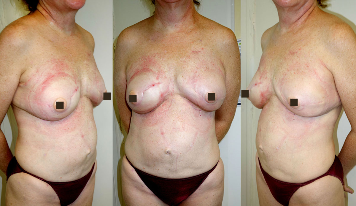 immediate mastectomy reconstruction with fat prophylactic after 2nd surgery