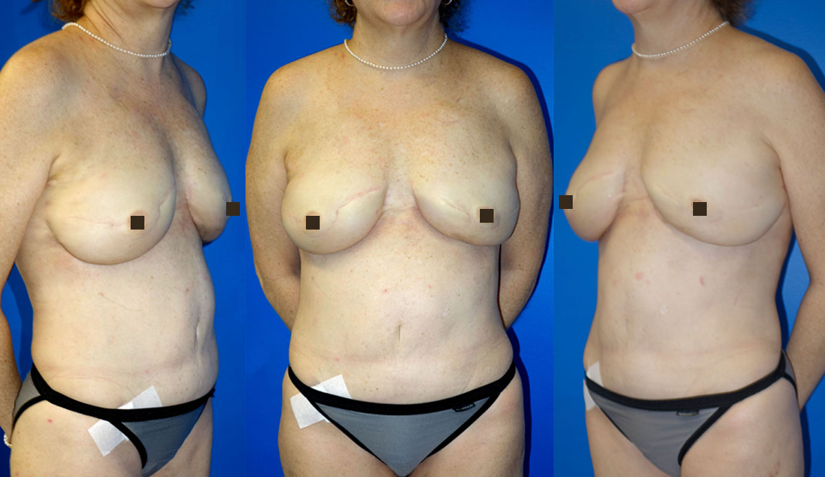 prophylactic mastectomy reconstruction after second surgery with fat