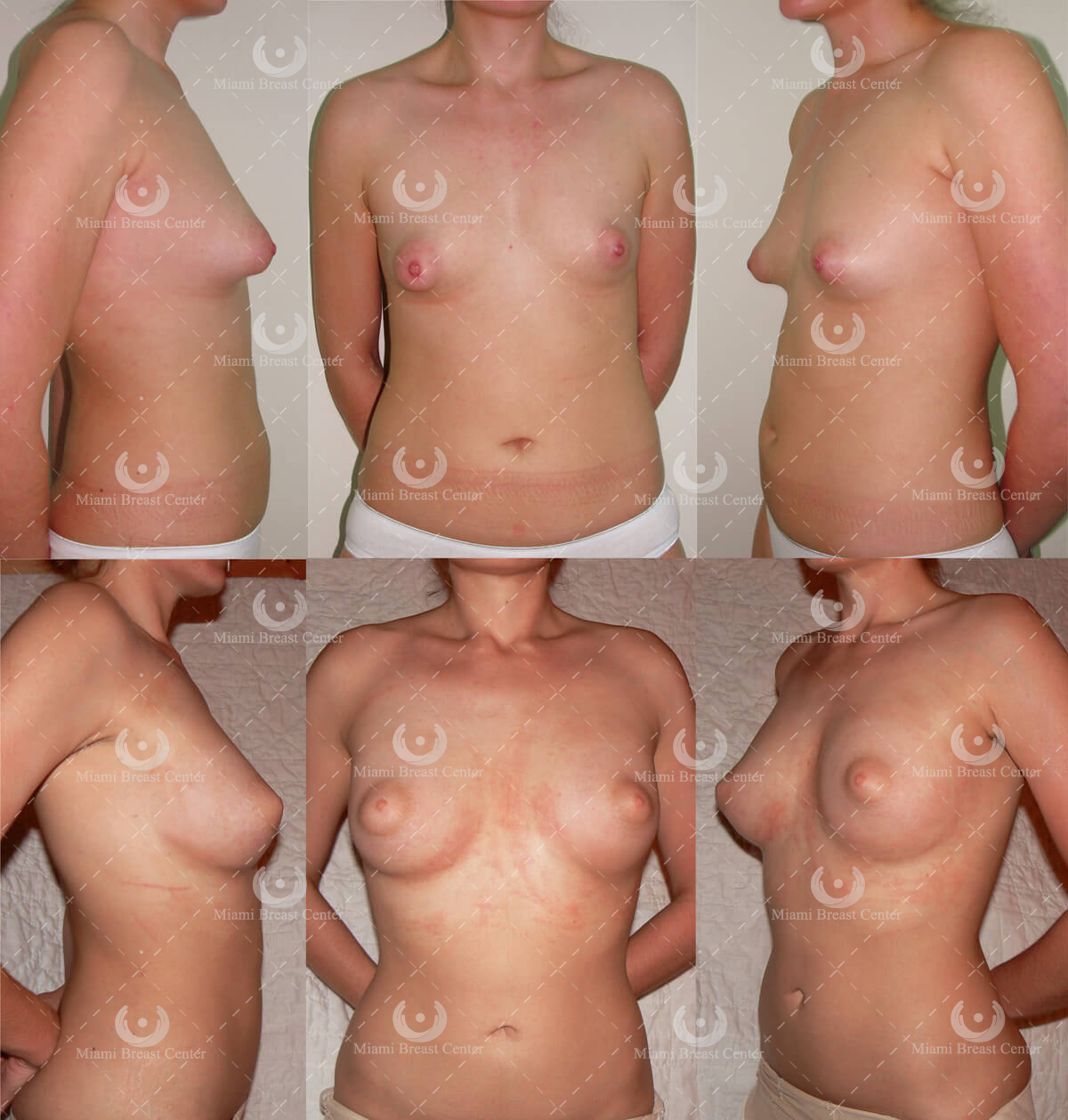 tubular breast correction before after