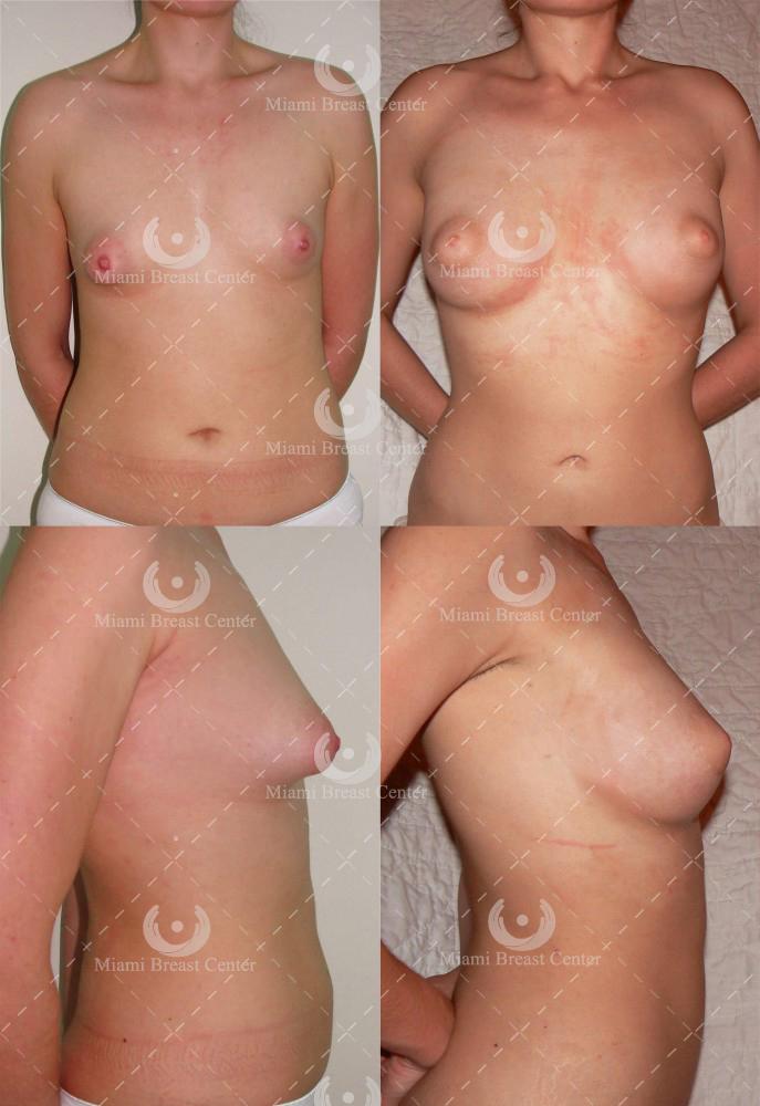 tubular breast deformity