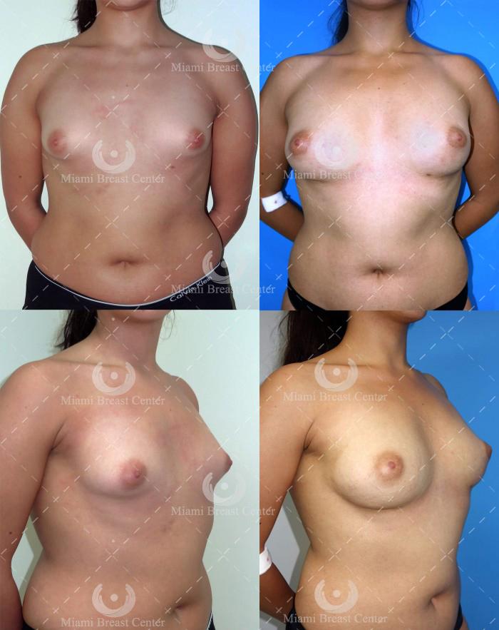 deformidad de mama tubular