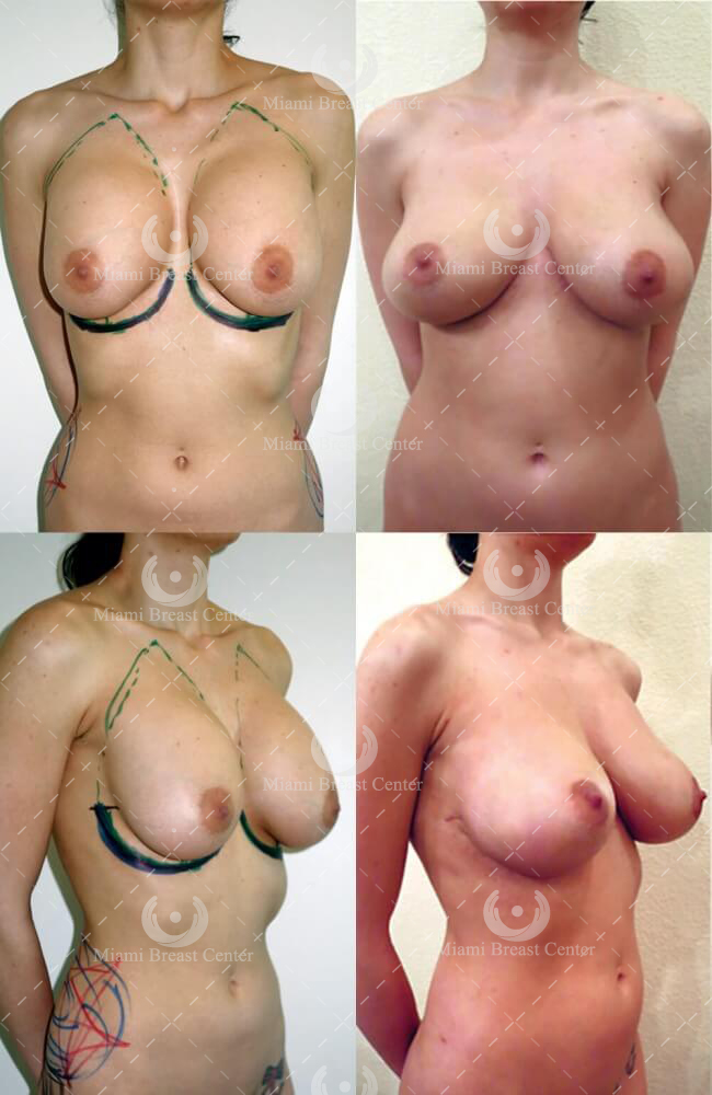 breast implant removal photo