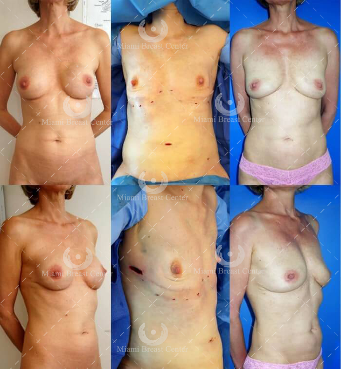 Breast Implant Removal Before & After Pictures
