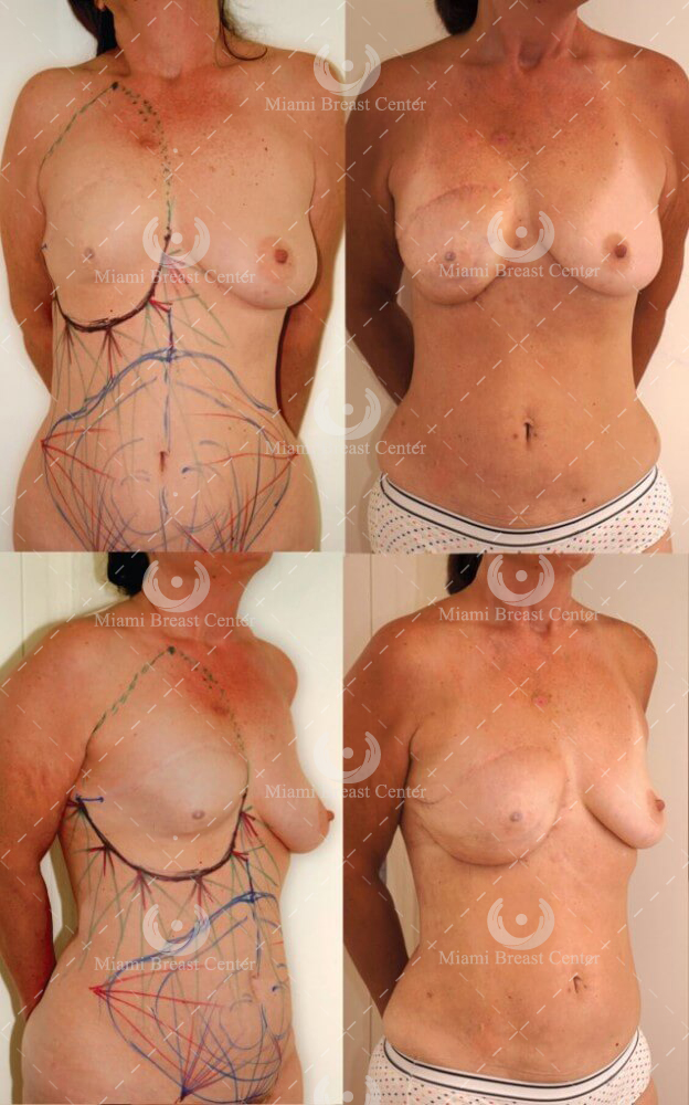 breast reconstruction failed implants before after photo