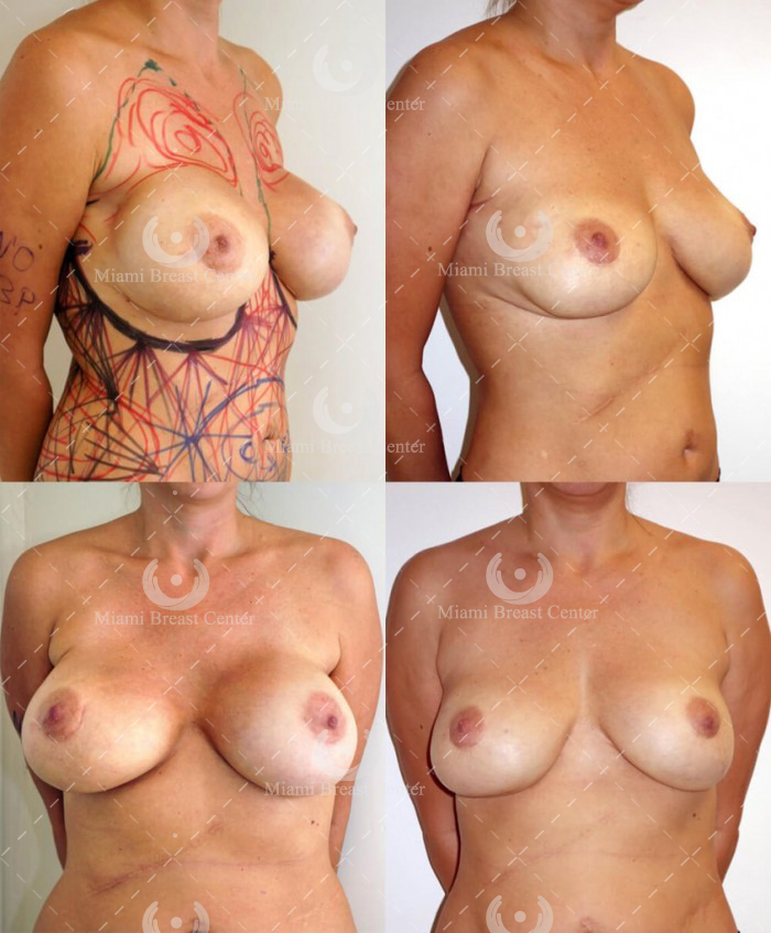 removal of breast implants and fat transfer