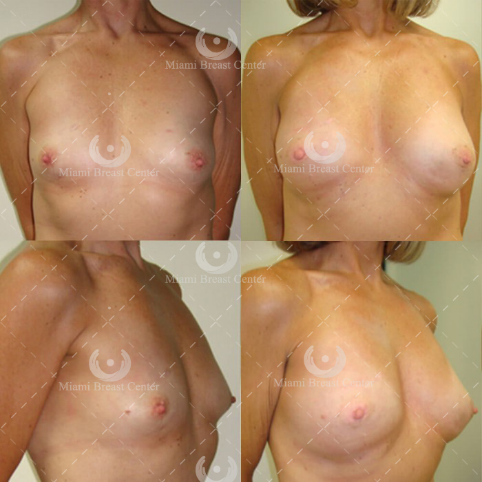 Lumpectomy Reconstruction