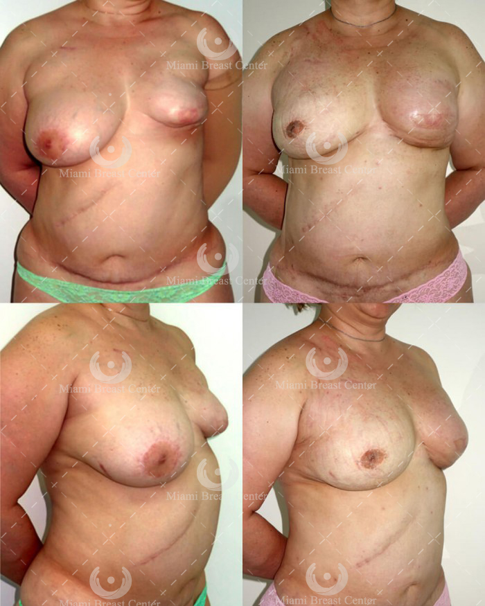 lumpectomy reconstruction pictures