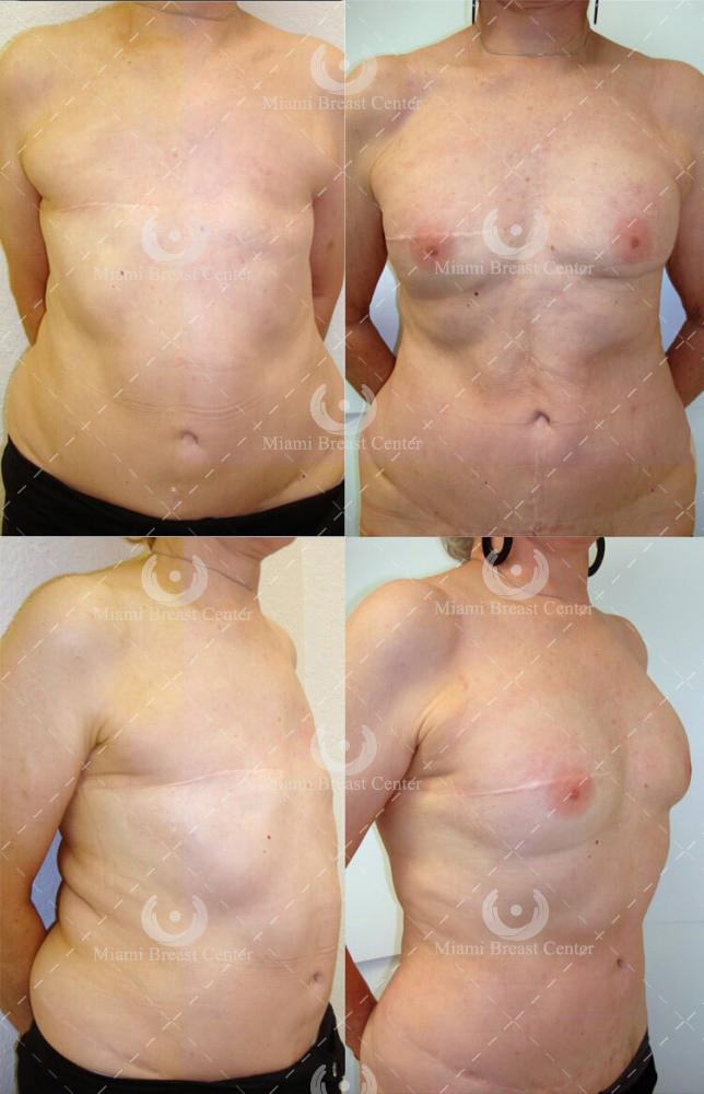 reconstrucción de mama antes de después de la foto