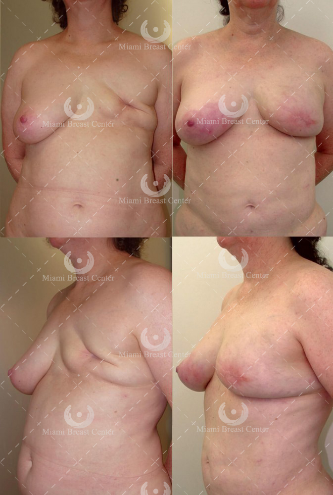 Unilateral Non-Radiated Mastectomy