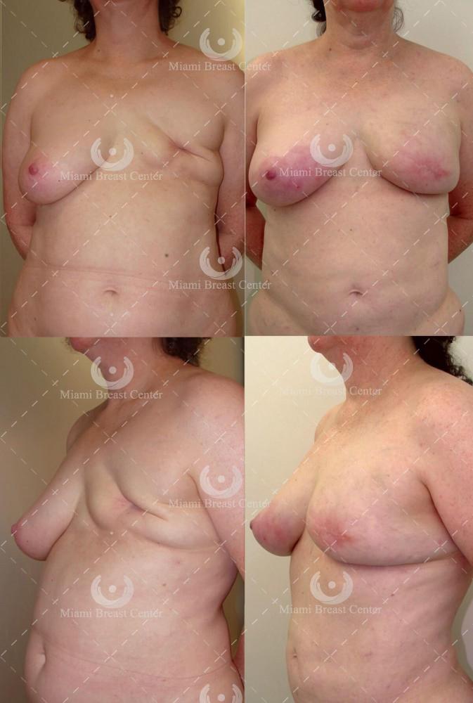 reconstrucción de la mama mastectomía, antes y después foto