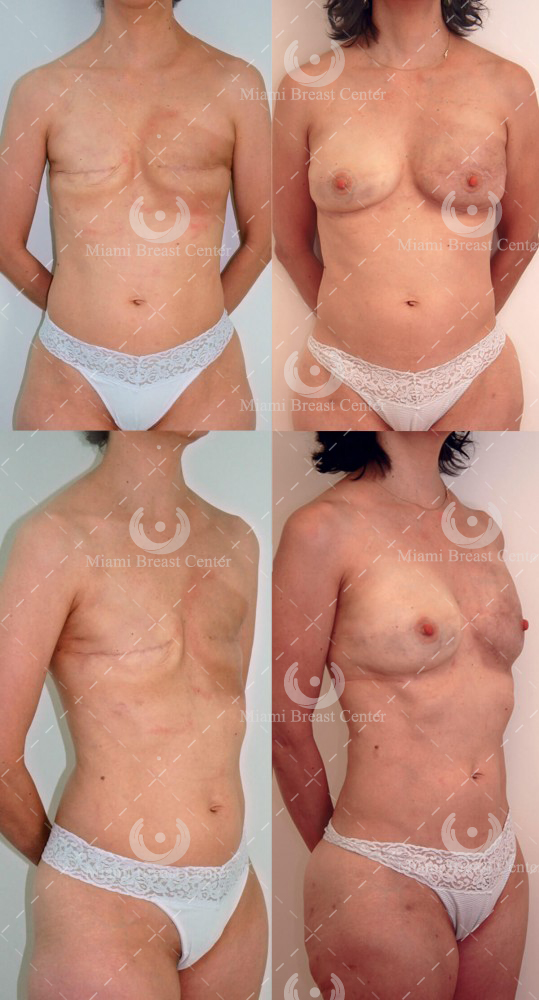 mastectomy breast reconstruction before after photo