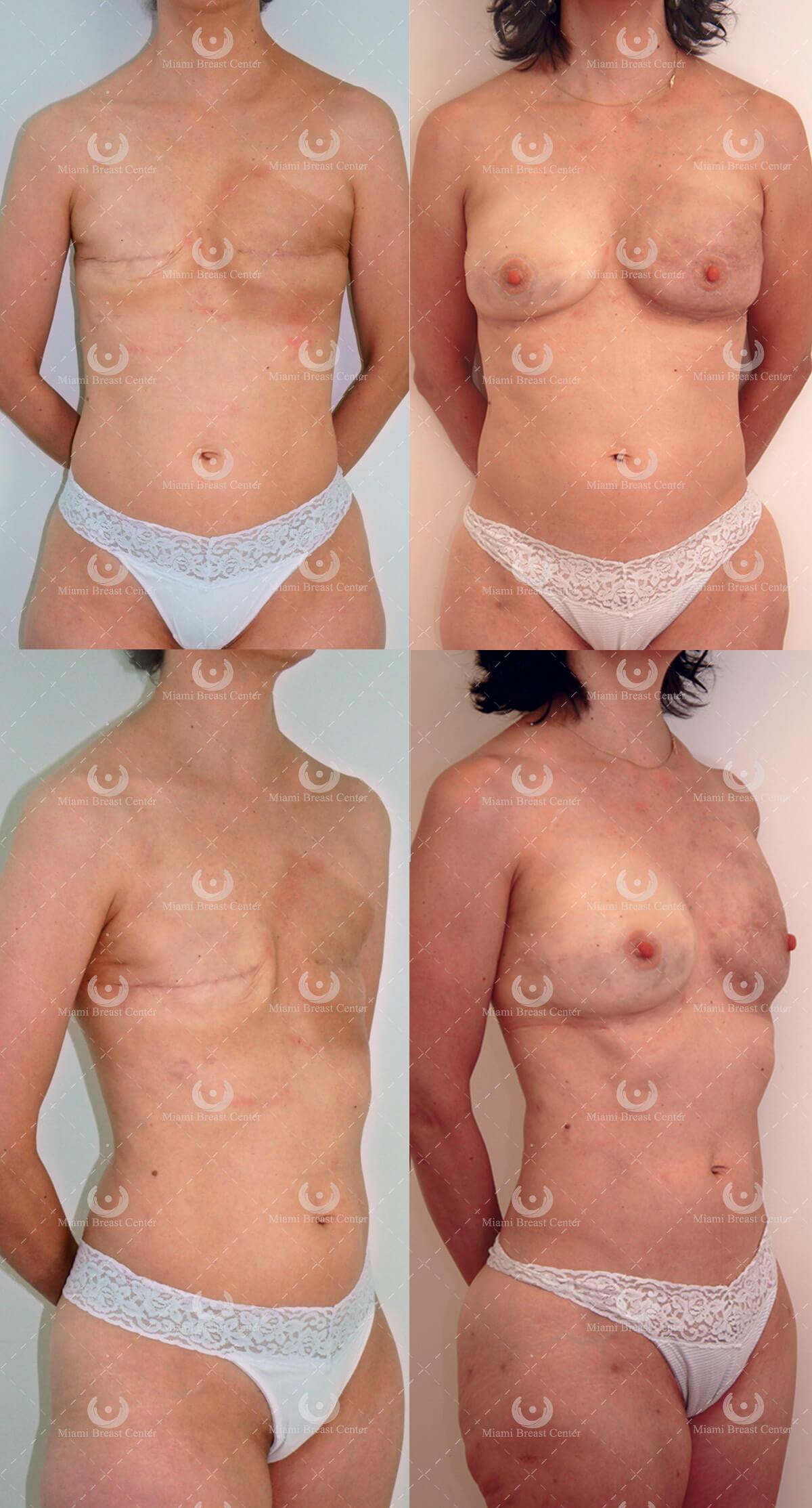 Como aumentar el volumen del pecho femenino