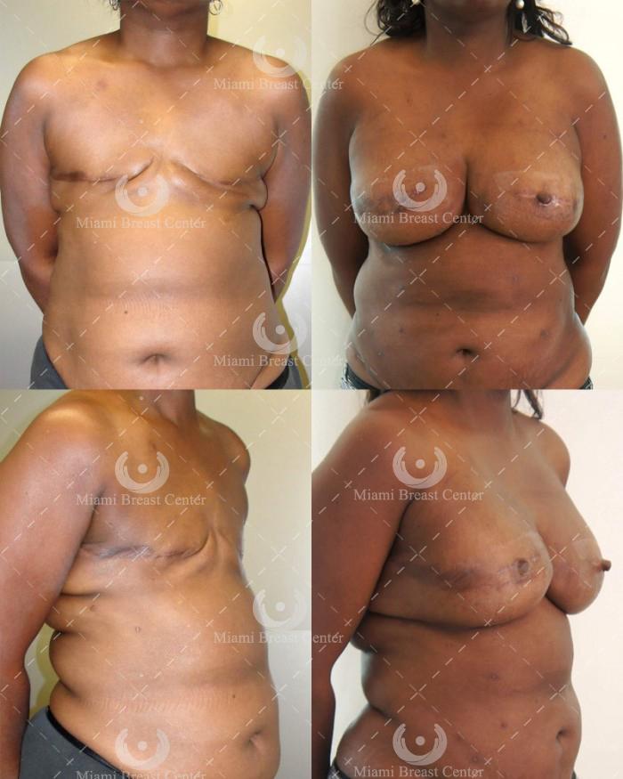 reconstrucción mamaria después de la mastectomía fotos