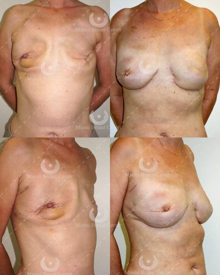 Reconstrucción mamaria bilateral