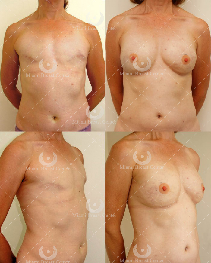 bilateral mastectomy with reconstruction