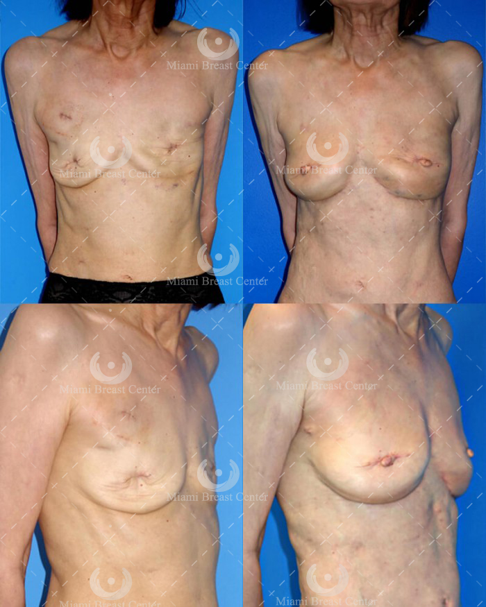 RAFT mastectomy breast reconstruction