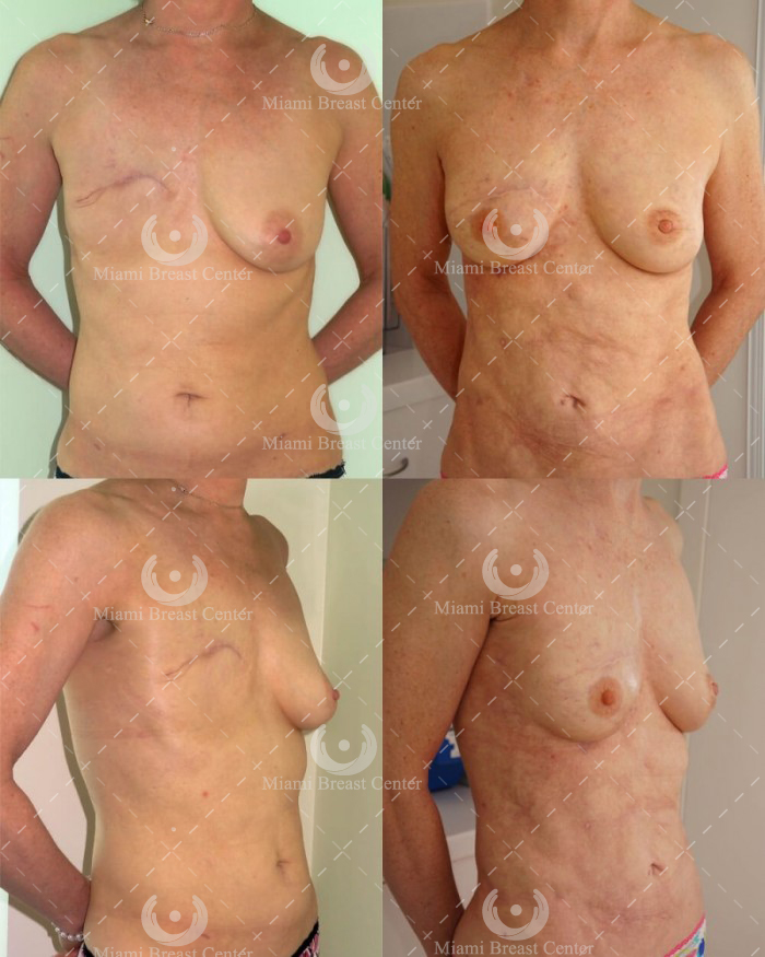 mastectomy reconstruction breast miami